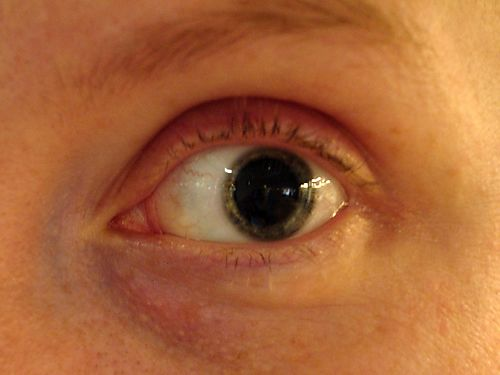 Dilated Pupil A